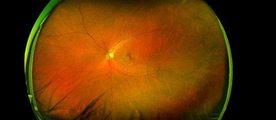 A photo of the inner eyeball